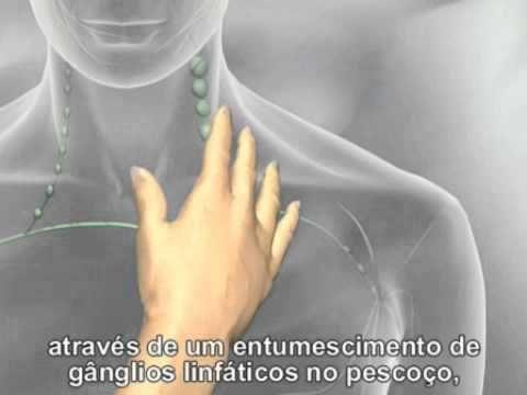 Detecção do Cancro - infocancro.com