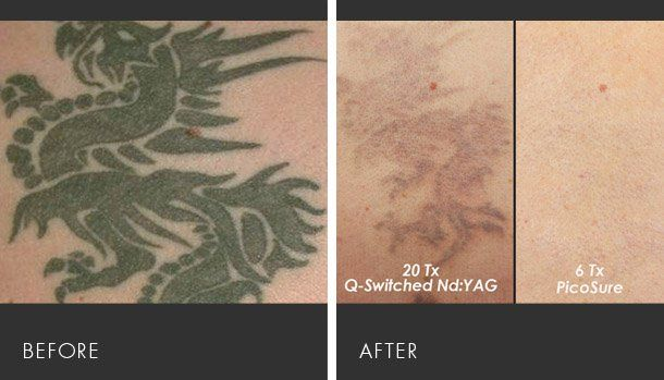 PicoSure - The Best Laser for Tattoo Removal