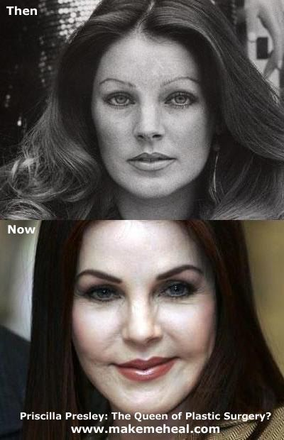 Priscilla Presley Very dumb move. At home fix your face party by an unknown. He used products from a place like Home depo