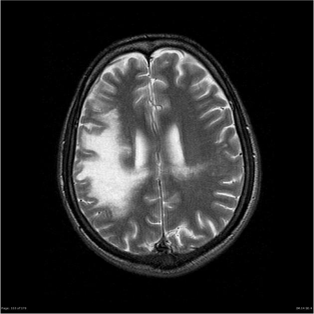 Progressive multifocal leukoencephalopathy (PML) is a demyelinating disease which results from the JC virus infecting oligodendrocytes. It is considered the most common clinical manifestation of JC virus infection in the brain. Patients with PML present with various neurological symptoms. It typically spares the optic nerve and the spinal cord.     Read more: http://radiopaedia.org/articles/progressive-multifocal-leukoencephalopathy