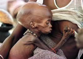 Resultado de imagen para niños desnutridos de africa