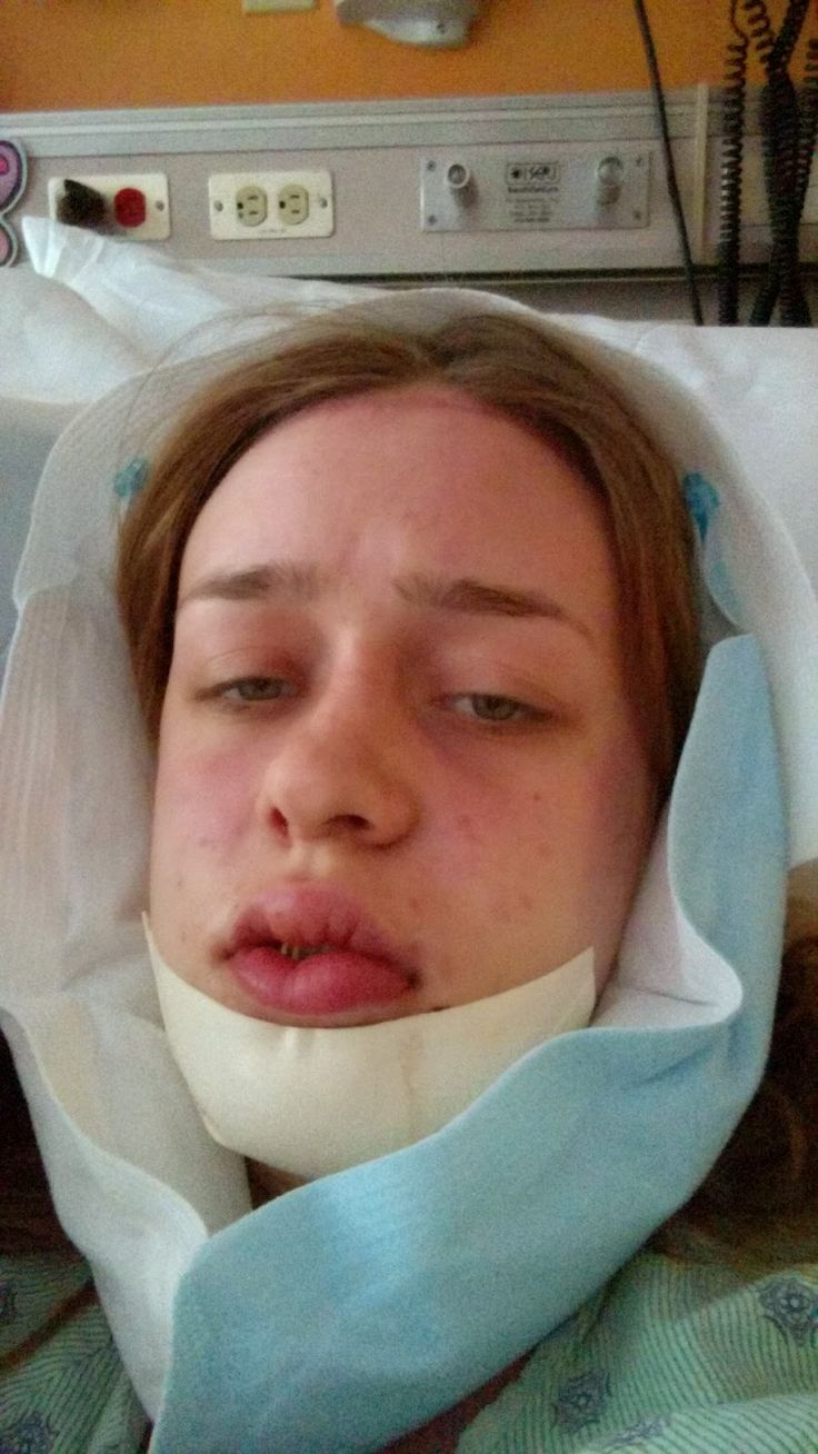 43 best Jaw Surgery Tips images on Pinterest | Healthy smoothies ...