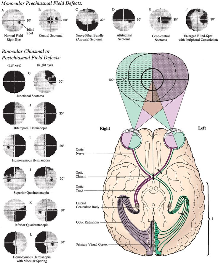 Neuro-Anatomy Eye Pathways and Corresponding VF Deficits - where was this when i needed it for the neuro test!