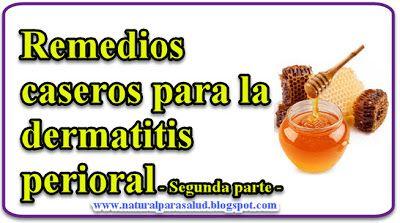 Remedios caseros para la dermatitis perioral - Segunda parte -