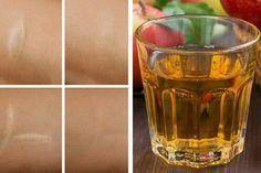 Um abgestorbene Zellen von der Haut zu entfernen und die Regeneration der Haut…