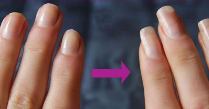 Here's The Common Item Already In Your Kitchen That Will Guarantee Your Nails Grow Like Crazy…