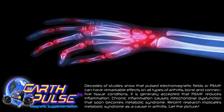 For #Arthritis, #PEMF alleviates Pain, exerts anti-inflammatory action & helps bone remodeling: http://pemfhealing.in/indian-doctors-arthritis-therapy/
