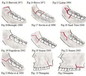CIRUGÍA BUCAL: Incisiones para exodoncia de terceras molares impactados   Ovi Dental