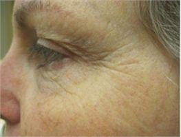 Sure way to get rid of wrinkles