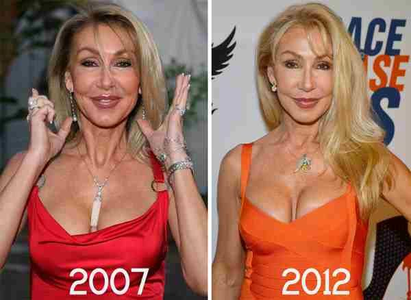 Linda Thompson Facelift