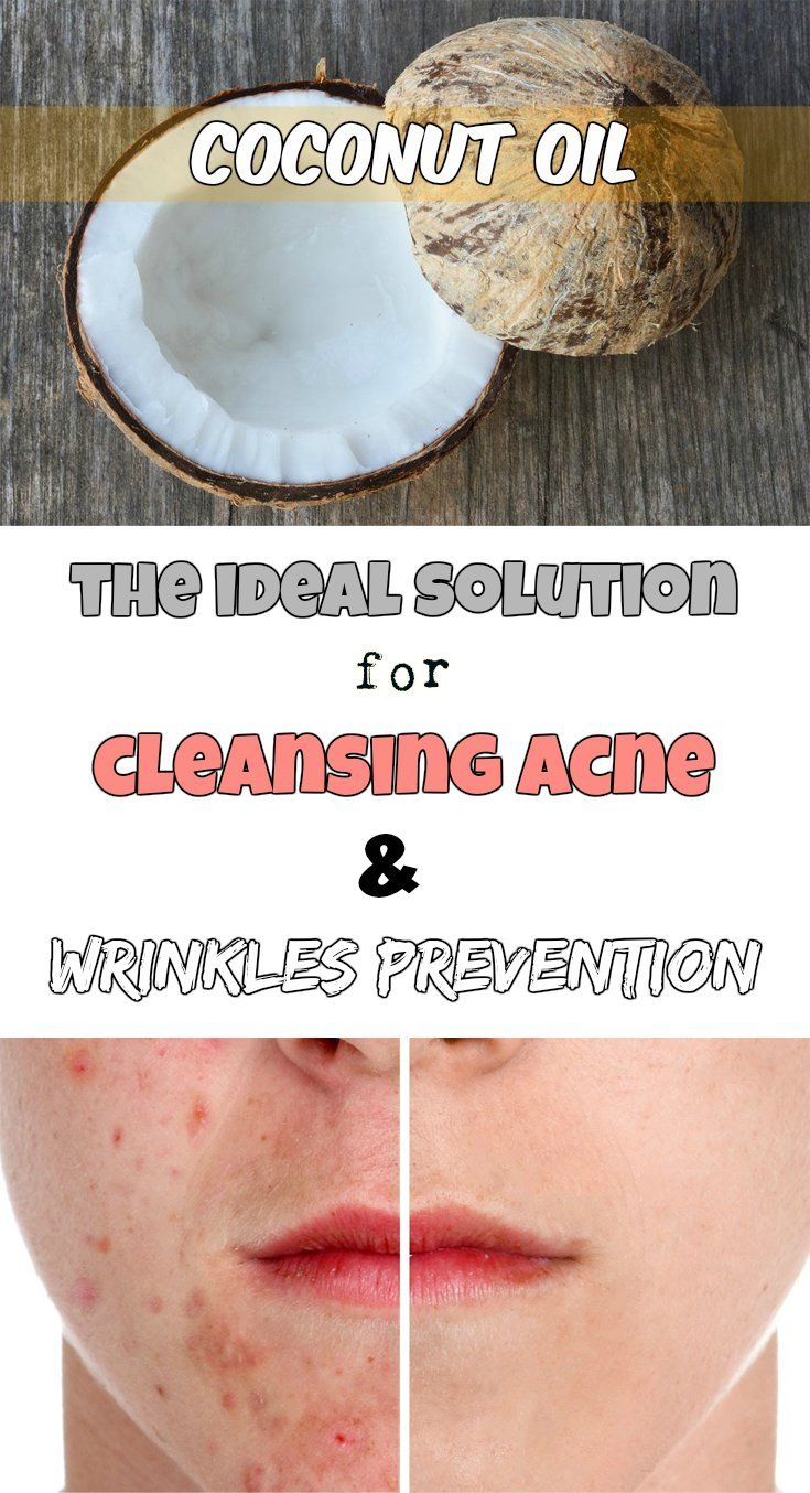 Coconut oil: The ideal solution for cleansing acne and wrinkles prevention
