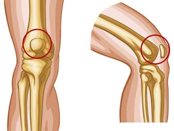 Άσκηση 1η: Έκταση του γόνατος ενώ είστε καθιστοί (με κίνηση)  Καθίστε ευθυτενείς σε μια καρέκλα και ακουμπήστε τα πόδια σας στο πάτωμα. Σιγά-σιγά σηκώστε και ισιώστε το πόδι που σας πονά μέχρι να νιώσετε τους μηρούς σας να σφίγγουν.Κρατήστε το πόδι σας σε αυτή τη θέση και ύστερα επιστρέψετε στην