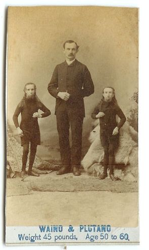 1880's -Hiram and Barney were two mentally disabled brothers from a Connecticut farm, born in 1825 and 1827 respectively. They were each 40 inches tall and weighed about 45 pounds, yet could perform feats of great strength such as lifting heavy weights and wrestling with audience members on stage. Discovered and subsequently promoted by a traveling showman in 1850, Hiram and Barney were given new names, Waino and Plutano, and a sensational back story - they were said to be from the island of…