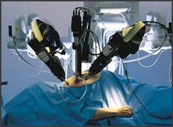 - See more at: http://www.davincisurgery-lawsuit.com/bad-robot-surgery/#sthash.4SPtYinA.dpuf