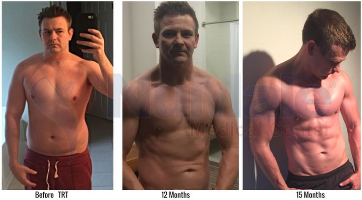 Jacob  #Transformation. . To learn more about Testosterone Replacement Therapy #TRT, call  (866) 205-8262 . . . . . . #Testosterone #Men #LowT #LowTestosterone #MensHealth #Fat #Obesity #Obese #BellyFat #BHRT #ErectileDysfunction #Energy #Erection #Fatigue #Libido #FitnessMotivation #Muscle #Hormones #AntiAging #Healthy #Fit #Fitness #WeightLoss #Overweight #LoseWeight #FatLoss #Health #Wellness