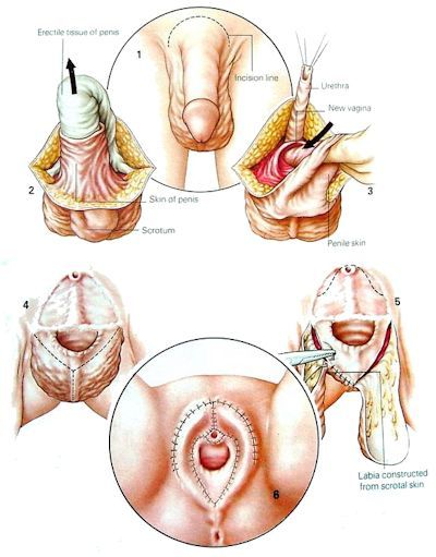 Sexual Organ Of Transgender