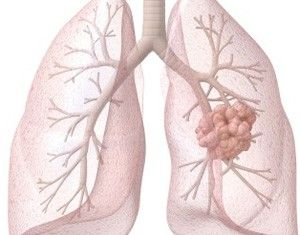 How To Handle A Mesothelioma | Mesothelioma Guides