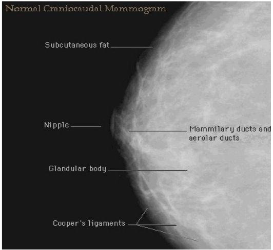 -normal-mammogram