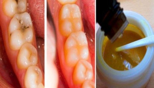 Heal Tooth Decay And Reverse Cavities Naturally With THIS Powerful Tooth Mask