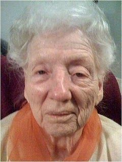 90 year old lady after a 10 minute treatment to one half of her face…