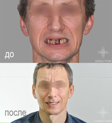 Протезирование на имплантатах: до и после