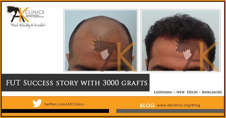 Happy patient of 3000 grafts FUT Hair Transplant result #result #surgery #hairtransplant #haircare #hairrestoration #hairlosstreatment #AKClinics