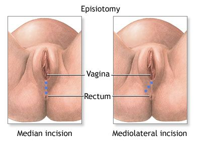 Do you want to know how to heal episiotomy faster? This is ...