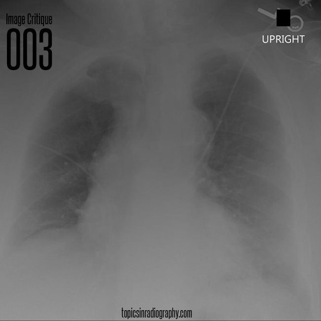 56 best radiographic positioning images on pinterest radiology image critique 003 after you finish your critique come to my site to see fandeluxe Choice Image