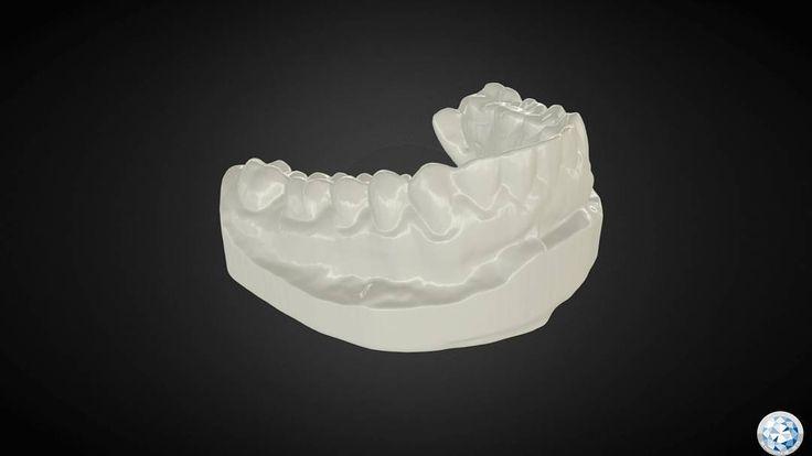"""Escaneo de una dentadura humana con el equipo EinScan-S"" Teeth Scan by Esteban Velásquez Ren using EinScan-S. Selected from EinScan-S Scan Sharing Act. BTW: Shining 3D also owns professional dental scanner like autoscan-DS series :) #shining3d #einscan #3dscanner #3dscanning #dentalscanner #3dtech #3dsign #3d #3dprinting #3dprintingday by shining3d"