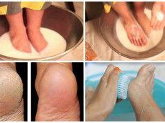 Neutrácejte peníze na pedikúru! Použitím dvou ingrediencí z vaší kuchyně si zajistíte pěkný vzhled vašich nohou navždy