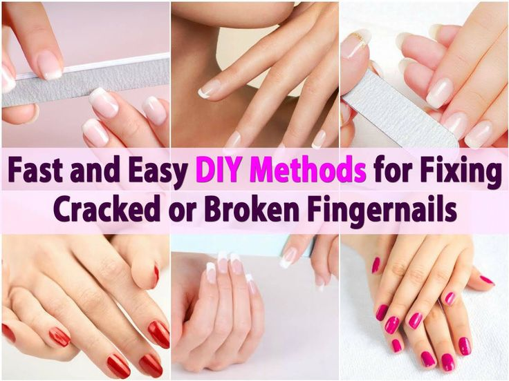 Ah, the broken fingernail. It's the bane of every woman's existence. At some point, most women have experienced it and filing the nail down is just the worst feeling in the world, particularly when your nails are long. There are a number of DIY fixes for repairing cracked nails that will keep...