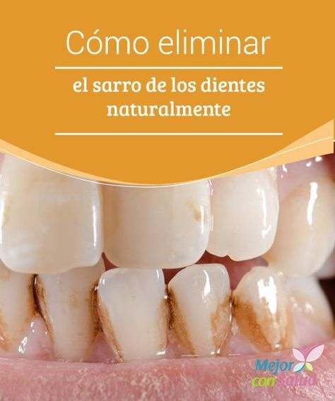 """Cómo eliminar el sarro de los dientes naturalmente El sarro es la acumulación de alimentos y residuos en el """"límite"""" entre las encías y la parte de atrás de las piezas dentarias que son rugosas."""
