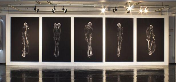 Dois amigos japoneses criaram uma exposição de obras de arte que mostram o corpo humano em diversas posições, abraçados, através do raio-x.