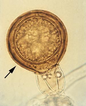 oogonium (pl. oogonia): female gametangium of Oomycetes, containing one or more gametes (Phytophthora cinnamomi)