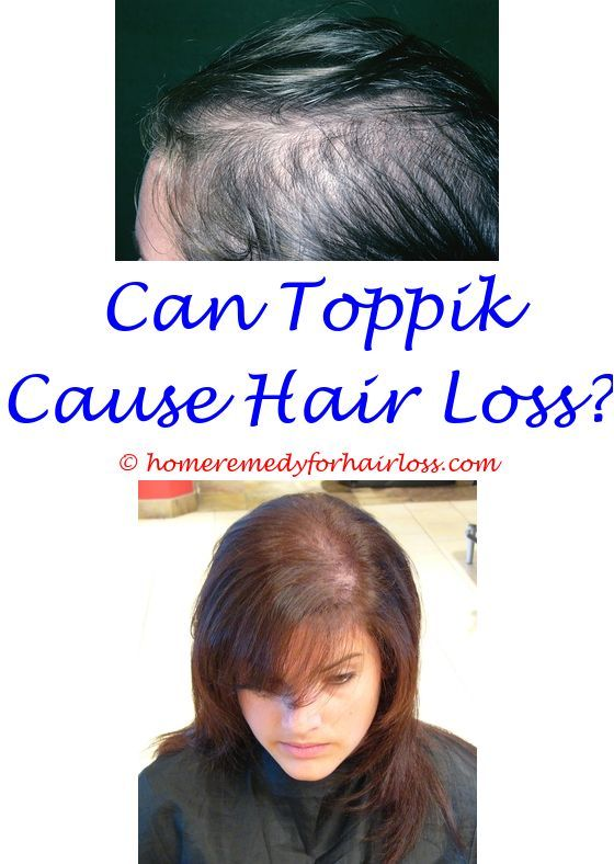 Hair Loss In Nose Celebrity Hair Losswigs For Loss Of Hair In