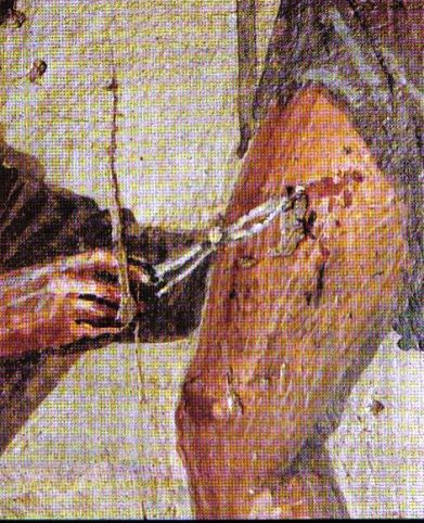 Mosaic in Pompeii - suturing a wound. Fascinating.