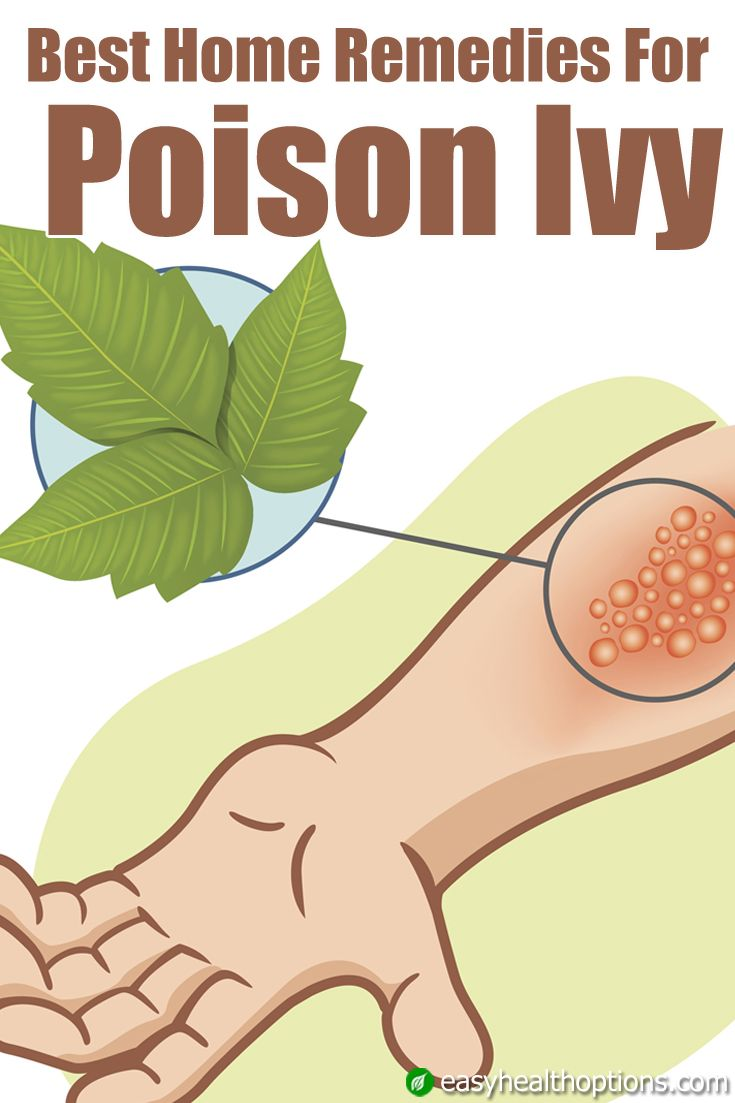One of the deadliest natural poisons known is urushiol, and it is the very toxin found within the poison ivy plant. It's no wonder when we come in contact with it, we rash out. Let's take a look at some natural home remedies for treating the symptoms of poison ivy.