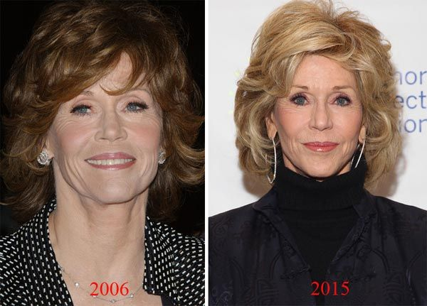 Jane Fonda: Plastic Surgery Or Just Good Genes? - http://plasticsurgerytalks.com/jane-fonda-plastic-surgery-or-just-good-genes/