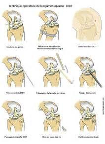 Recherche Comment soigner une entorse au genou. Vues 63557.