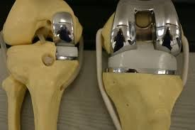 Partial Knee Replacement Irving - Contact At (972) 215-7700
