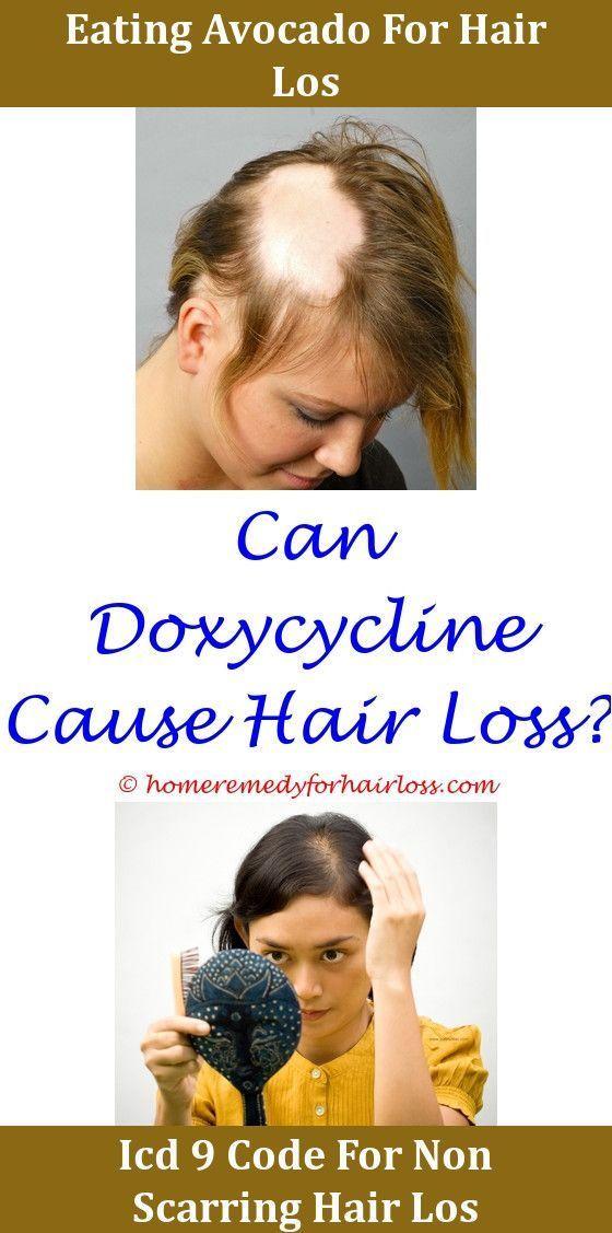 Hair Loss Took Tren Months Ago Hair Loss Statins That Dont