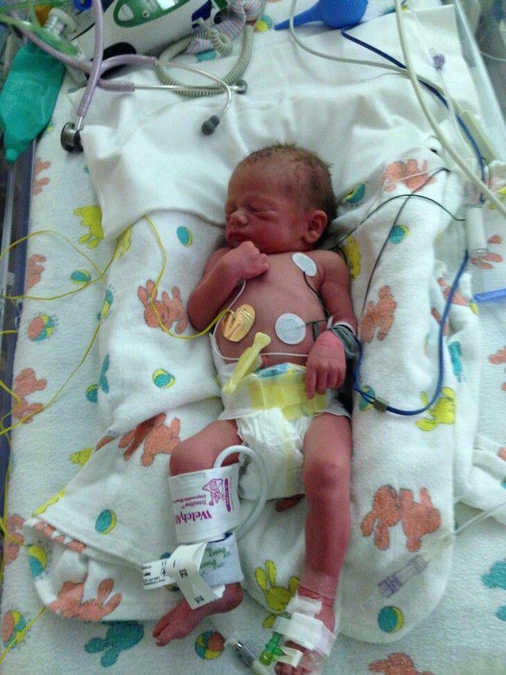 Meet Greyson Timothy thomas born at 33 weeks 4 pounds 7 ...
