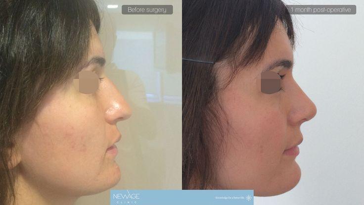 Die Patientin hatte eine Nasenkorrektur (Rhinoplastik) Op mit Dr Ozge Ergun von der Istanbul #Rhinoplastik #Nasenkorrektur #Ästhetische #ÄsthetischeChirurgie