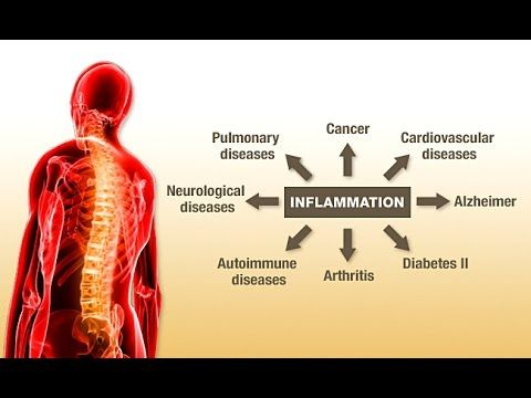 Dieta antinfiammatoria: Infiammazione cronica silente, Malattie infiammatorie croniche degenerative - YouTube