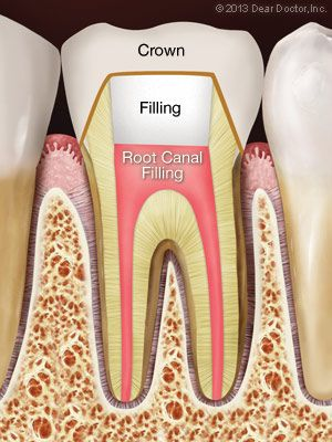 After root canal treatment.