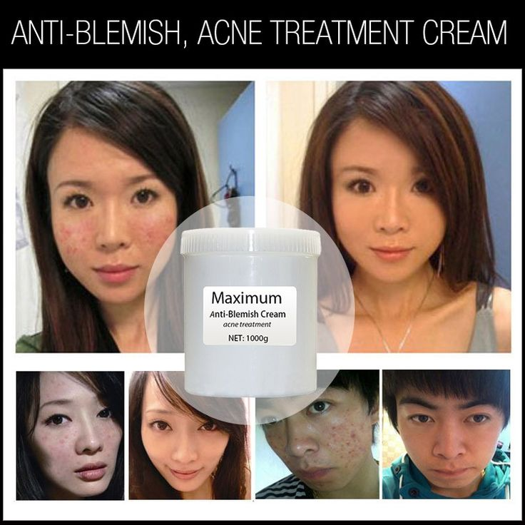 chinese herbal extracts anti acne pimples creams best skin care products all skin types