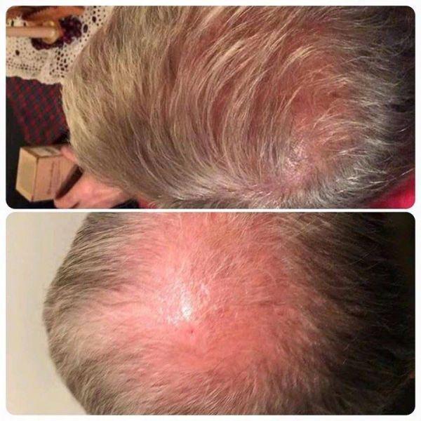 Natural Way To Thicken Hair And Stop Hair Loss