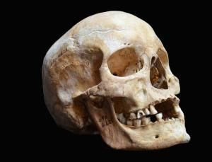 Medieval bones yield 1000-year-old leprosy genome