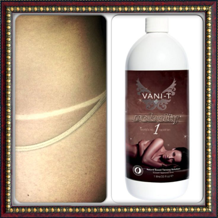 Vani-T Velocity - We have a range of Vani-T tans available.  Ask us what options there are and we can work out what is best for you.
