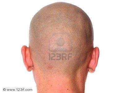 imagenes cabezas calvas - Buscar con Google